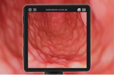Flexible Portable VIDEO Bronchoscope